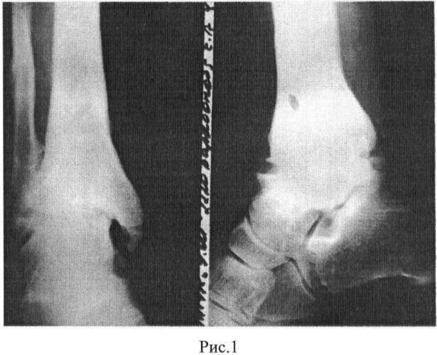 Артродез голеностопного сустава мовшович разрыв связок коленного сустава восстановление