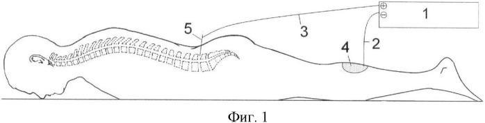 Способ лечения грыж поясничных межпозвонковых дисков