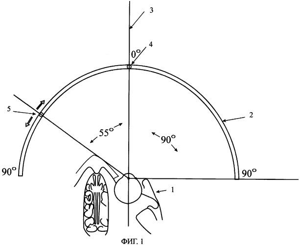 Способ определения периферических границ поля зрения периметрическим методом с подвижной точкой фиксации