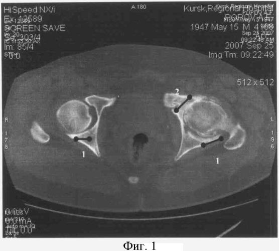 Способ диагностики локальных участков компрессии тазобедренного сустава у больных коксартрозом методом компьютерной томографии