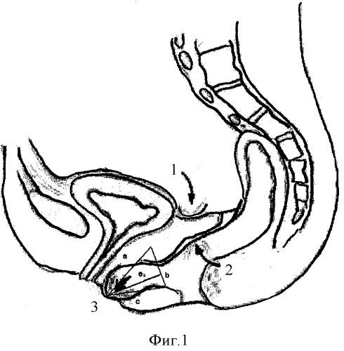 способы лечения паразитов