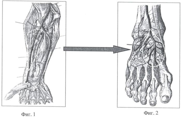 Method of treating chronic osteomyelitis of shin bone combined with ...