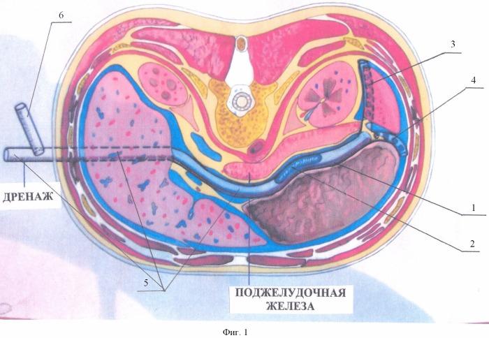 Способ хирургического лечения осложненных форм панкреонекроза