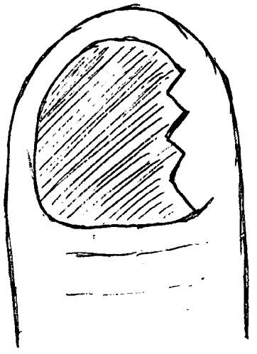 Способ профилактики деформации ногтевой пластины при лечении паронихия