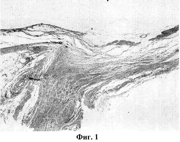 Способ создания модели частичной атрофии зрительного нерва