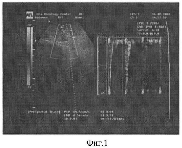 Способ оценки кровотока в нижней брыжеечной артерии методом триплексного сканирования у больных колоректальным раком