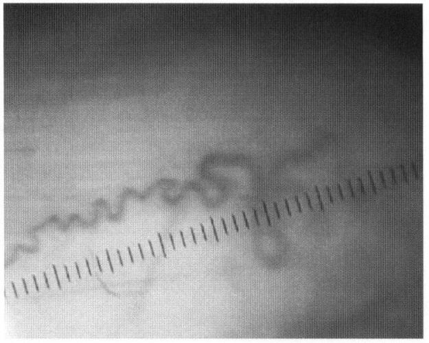 Способ диагностики варикозной болезни