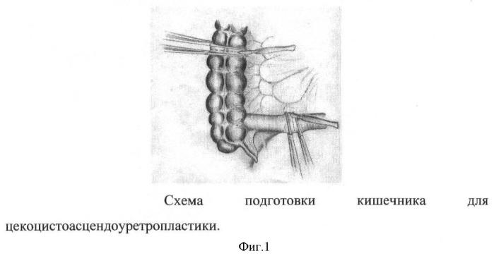 Способ цекоцистоасцендоуретропластики при экстрофии клоаки