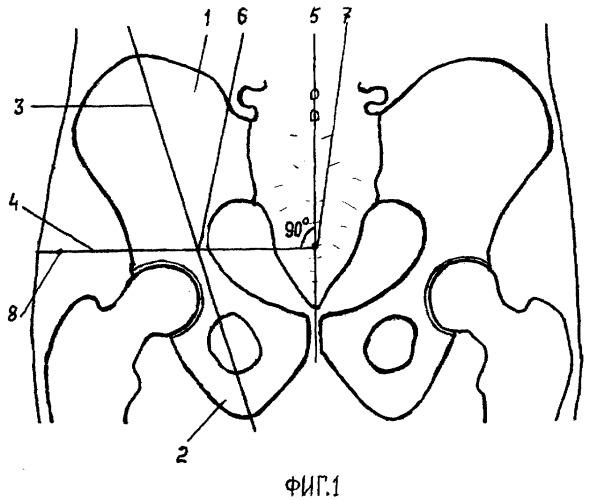 Способ определения глубины введения иглы для блокады верхнего ягодичного нерва