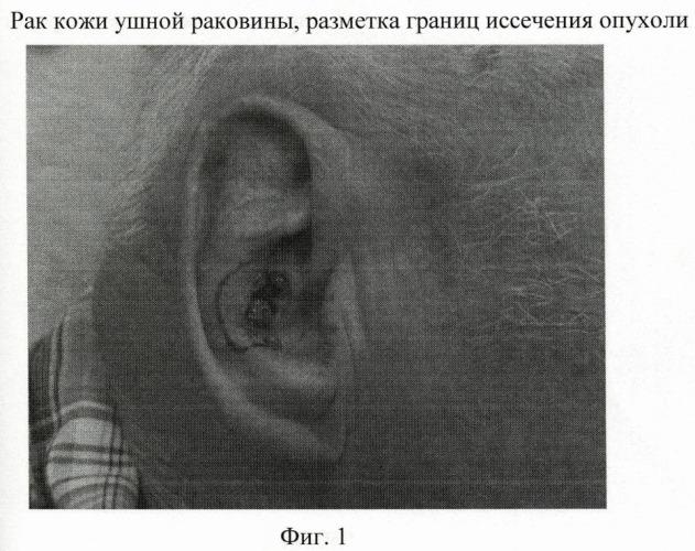 Способ пластики центрального сквозного дефекта ушной раковины