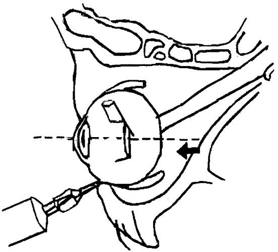 Способ проведения ретробульбарной анестезии при полостных операциях на глазном яблоке