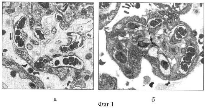 Способ диагностики внутриутробного инфицирования у матерей с урогенитальным хламидиозом