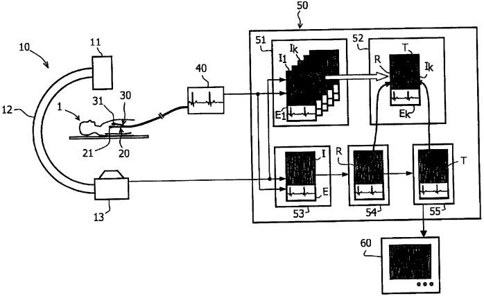 Устройство и способ направления катетера при электрофизиологических исследованиях
