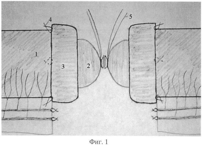 Способ формирования компрессионного межкишечного анастомоза