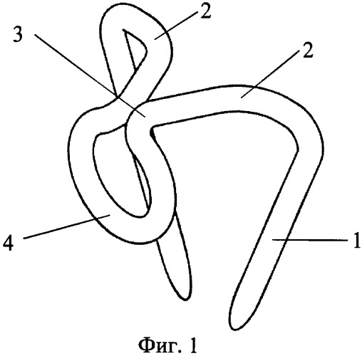 Устройство для фиксации симфиза