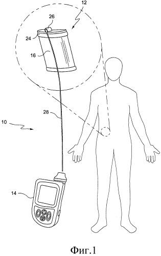 Гибридное устройство для клеточной терапии
