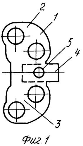 Фиксатор для стабилизации обломков при высокой корригирующей подмыщелковой остеотомии с открытым углом