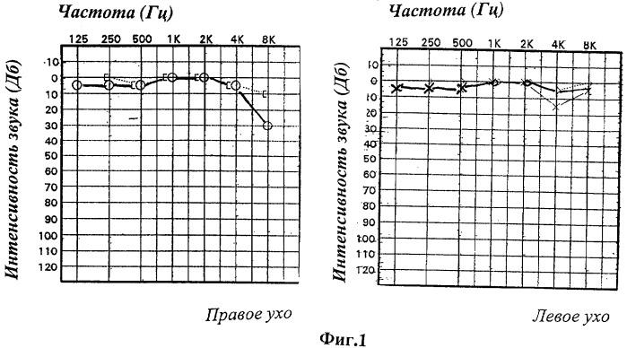 Способ диагностики ретрокохлеарных и центральных слуховых нарушений