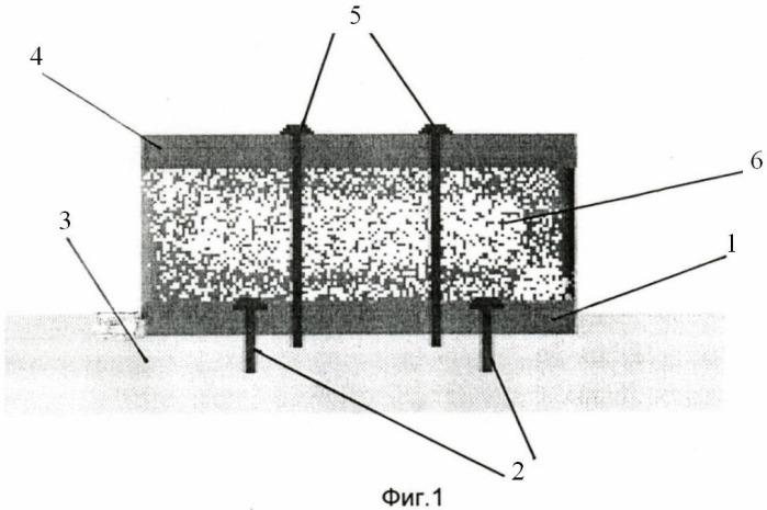 Способ реконструкции атрофированной альвеолярной части нижней челюсти