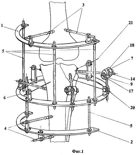 Способ лечения переломов в области коленного сустава и устройство для его осуществления