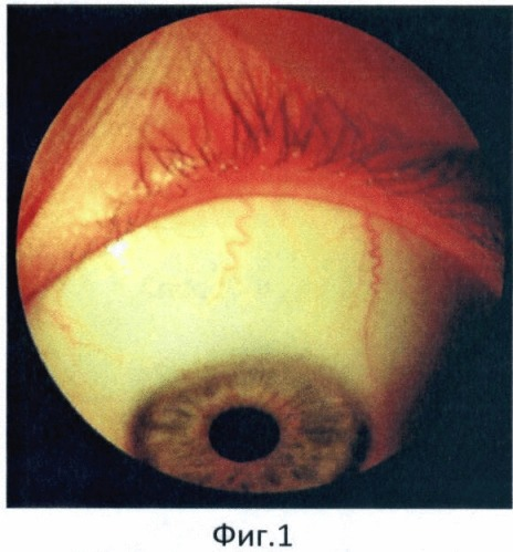 Способ исследования кровообращения переднего сегмента глаза