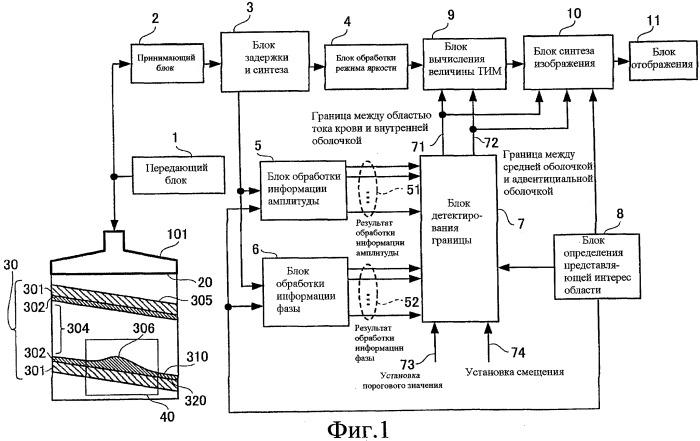 Устройство для ультразвукового исследования