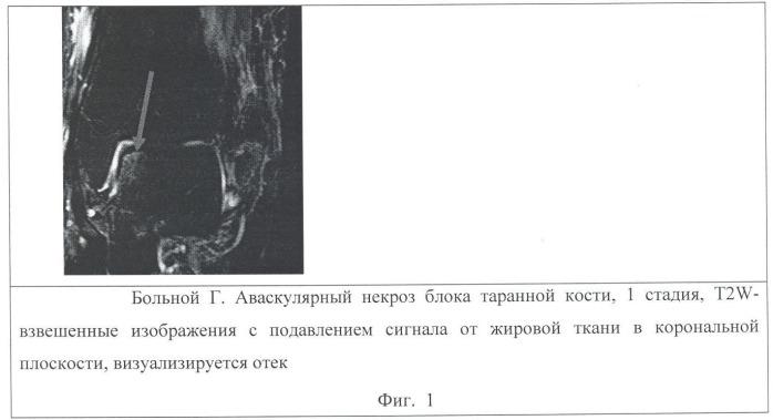 Способ выявления и оценки аваскулярного некроза блока таранной кости с использованием магнитно-резонансной томографии
