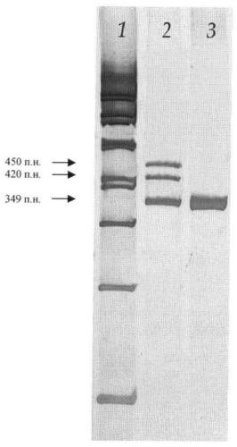 Способ обнаружения мутации p369ins в гене cyp1b1