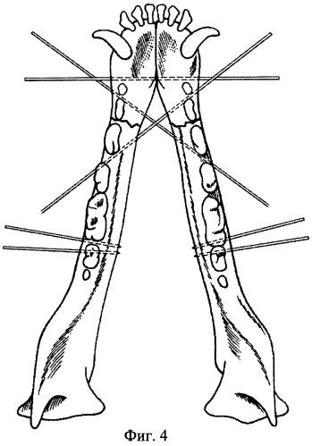 Способ остеосинтеза нижней челюсти животных