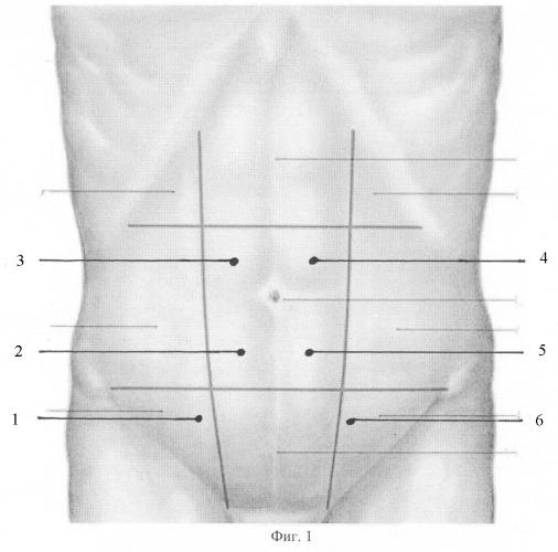 Способ выбора тактики послеоперационного лечения у больных вентральными грыжами после герниопластики сетчатым трансплантатом