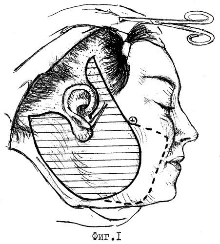 Способ хирургической коррекции выраженной носогубной складки при ритидэктомии