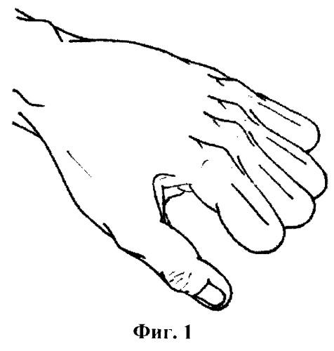 Способ двухэтапного удлинения культей трехфаланговых пальцев кисти