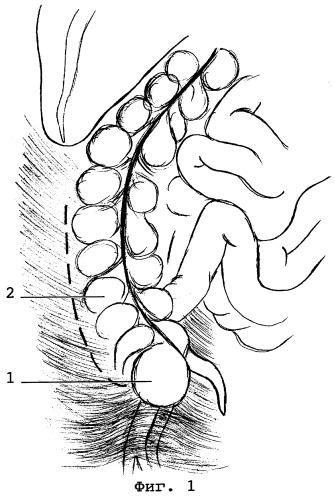Способ хирургического лечения аневризм брюшной аорты iii типа