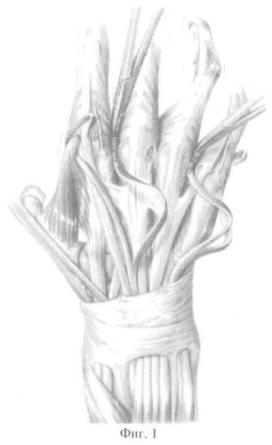 Способ восстановления активного разгибания межфаланговых суставов трехфаланговых пальцев кисти после реплантации (реваскуляризации) крупных сегментов верхней конечности