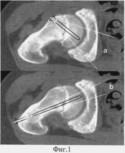Способ хирургического лечения тяжелых, нестабильных форм юношеского эпифизеолиза головки бедренной кости