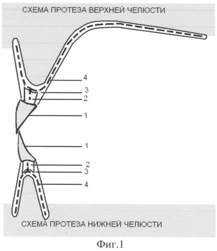 Каркасный съемный зубной протез с мягким базисом
