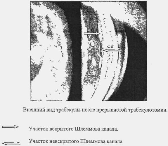 Способ лечения глаукомы путем трабекулотомии ab interno