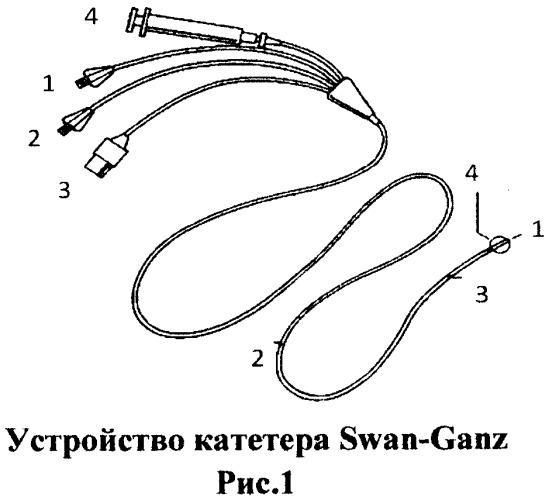 Способ катетеризации легочной артерии
