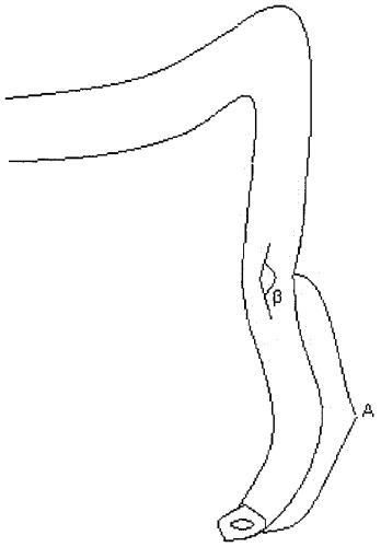 Способ формирования внебрюшинной колостомы
