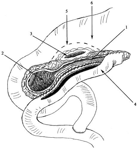 Способ хирургического лечения при хроническом рецидивирующем панкреатите