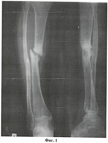 Способ лечения длительносрастающихся, несросшихся переломов и ложных суставов длинных костей