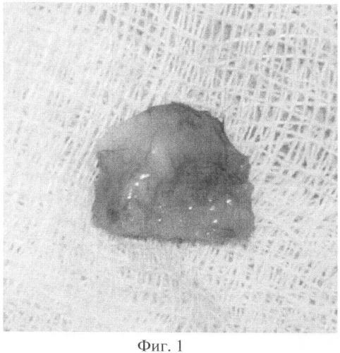 Способ моделирования злокачественных соединительнотканных опухолей (сарком)