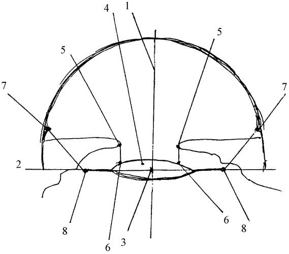 Способ ранней доклинической диагностики изменения положения в глазу искусственного хрусталика глаза