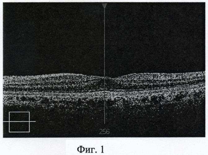 Способ раннего доклинического прогнозирования осложнений эпиретинальной мембраны у пациентов с высокой миопией