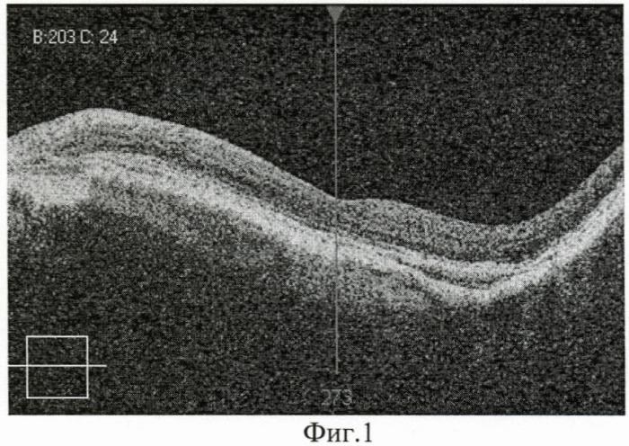 Способ ранней доклинической диагностики прогрессирования эпиретинальной мембраны у пациентов с высокой миопией