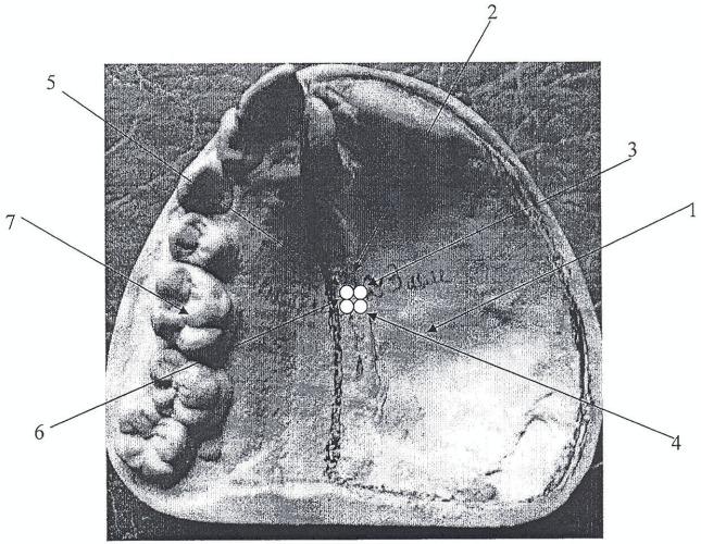 Способ забора биоптата слизистой оболочки протезного ложа зубочелюстного протеза