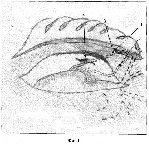 Способ маммарокоронарного шунтирования правой коронарной артерии у больных ишемической болезнью сердца
