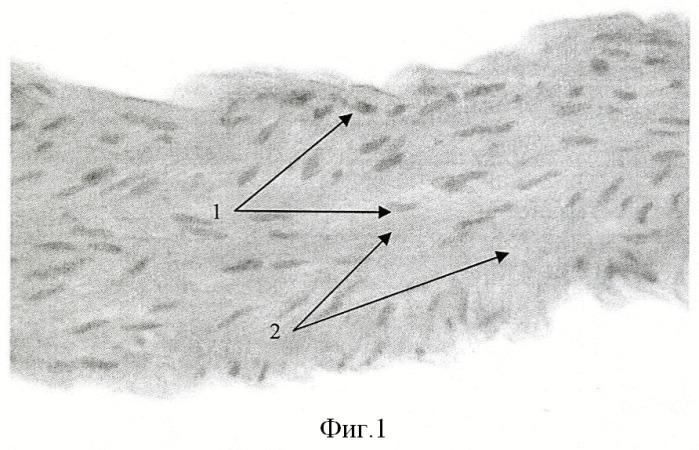 Способ получения соединительно-тканного каркаса магистрального сосуда млекопитающих животных и человека
