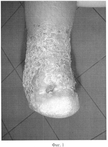 Способ лечения остеомиелита пяточной кости