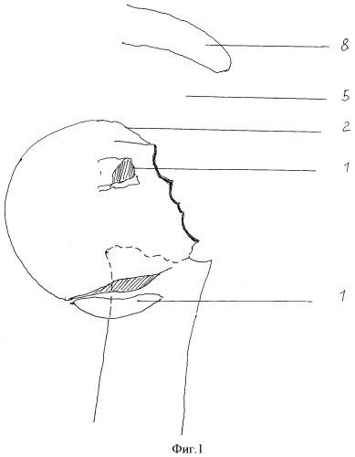 Способ хирургического лечения повреждений компонентов ротаторной манжеты плеча при переломах шейки плеча, переломо-вывихах, вывихах плеча